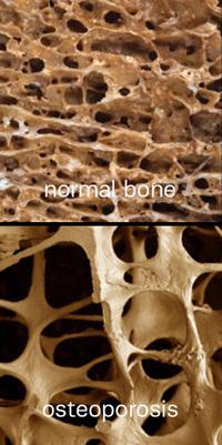 osteopenia4